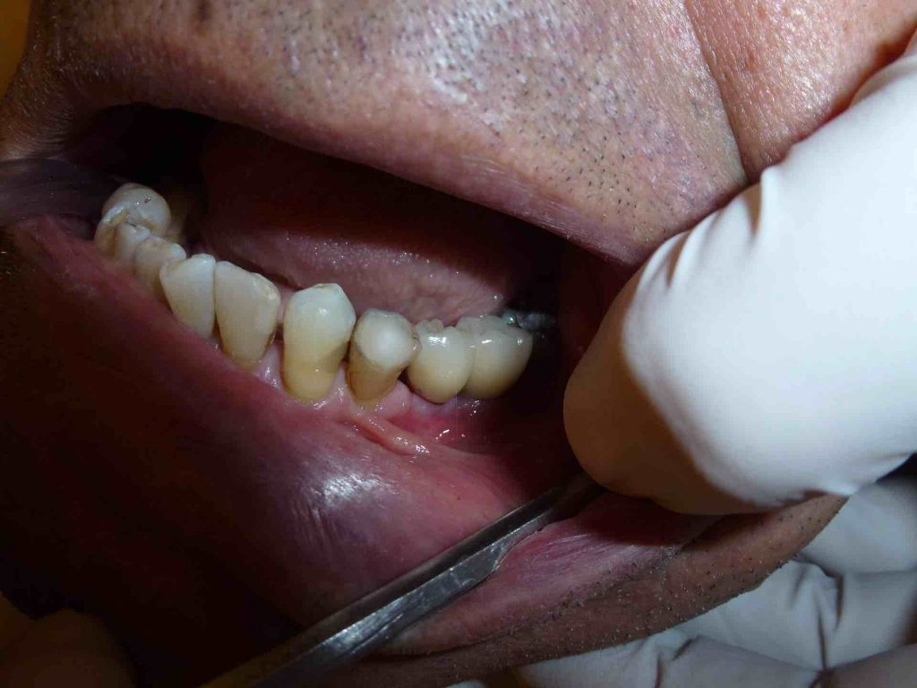 Picture of a man's dental implants