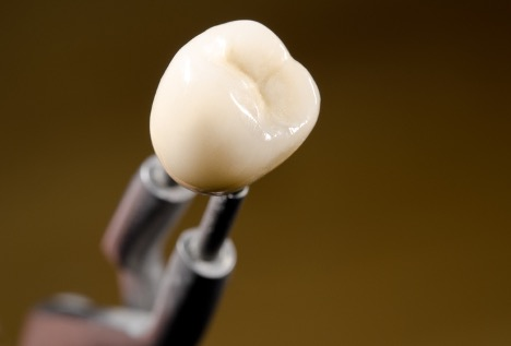 Picture of a tooth veneer